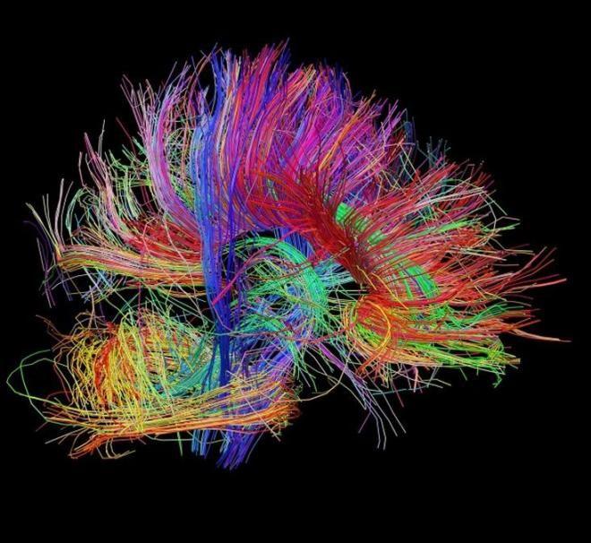 brain mapping image.JPG (660×606)