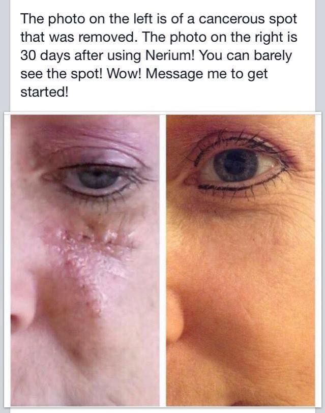 Before and after using Nerium on a scar from surgery!! Only 30 days. Nerium has a 30 day Money back guarantee.  Why wouldn't you try it?? Get started here.  http://rkanigan.nerium.com