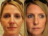 The Combination Of Face Regeneration Exercises And Natural Facelifts