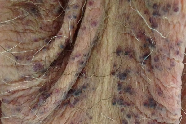 17 Best Images About Derm Dx On Pinterest Head And Neck
