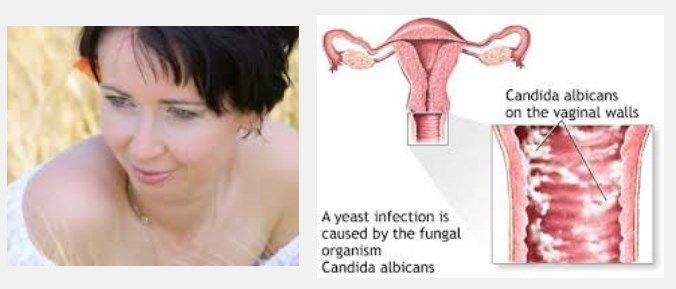 chronic yeast infections causes