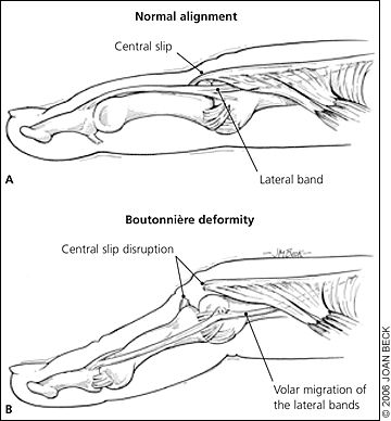 The 122 best SDP Tendons and Forces images on Pinterest | Robot ...