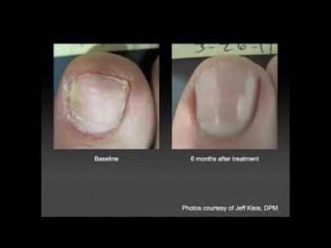 Wie Nagelpilz mit Essig in weniger als 3 Minuten zu heilen? – Behandle den Zehen…