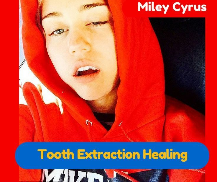 Internal Tooth Extraction Root Canal dentistryworld