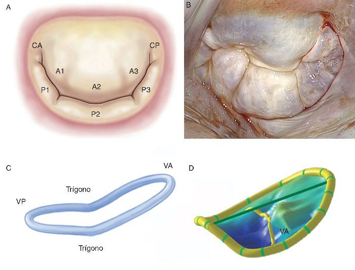 Resultado de imagen para ventriculo mitral