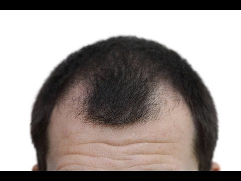 Does Rogaine Work on Front of Scalp?