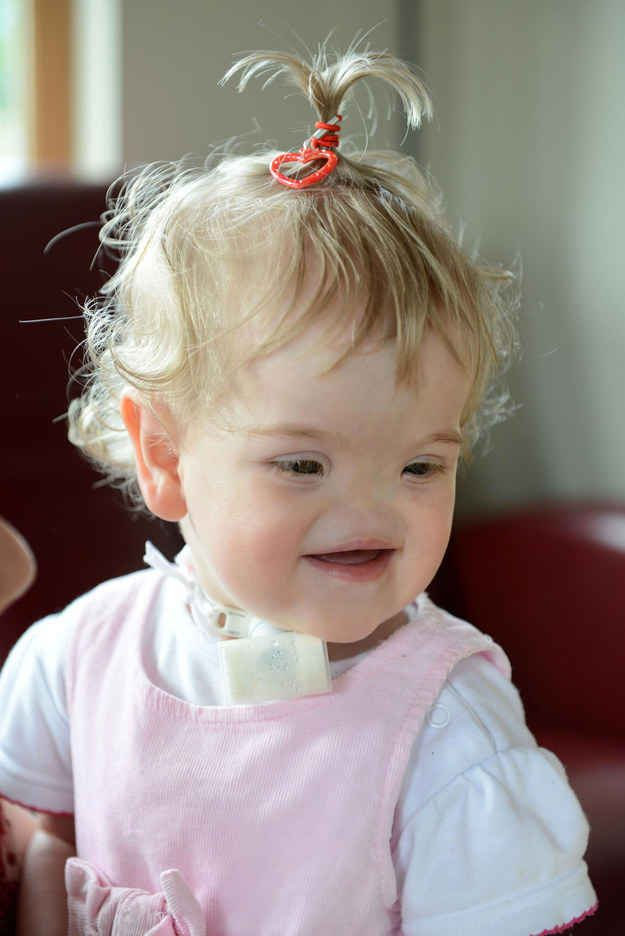 This Little Girl Was Born Without A Nose And She Can't ...