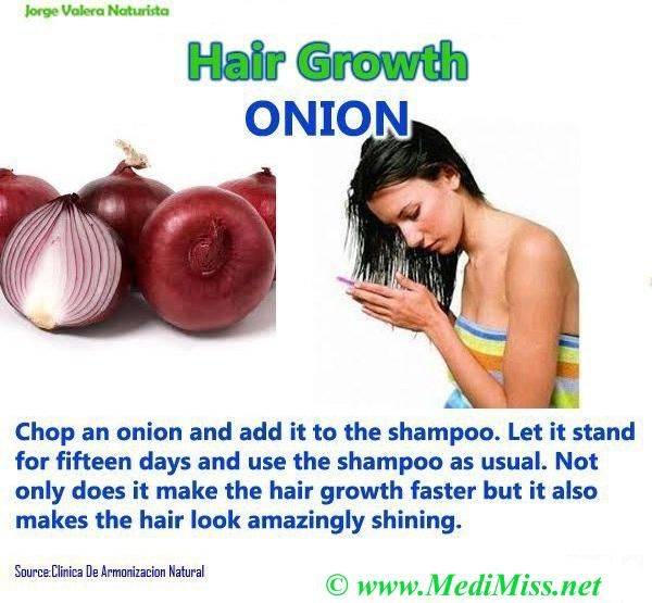 Add onions to shampoo and grow more hair.