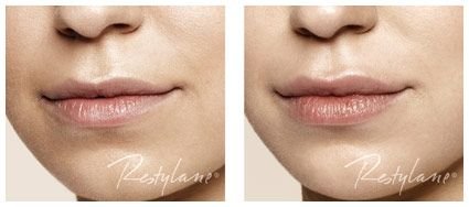 Less is more med Restylane LIP