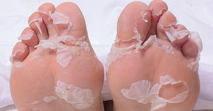 Bőrkeményedés a lábsarkon – probléma, ami nem csak a férfiakat, de a nők többségét is érinti.