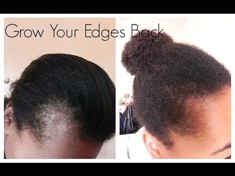 How To Grow Your Edges Back Stop Hair Loss Extreme Hair