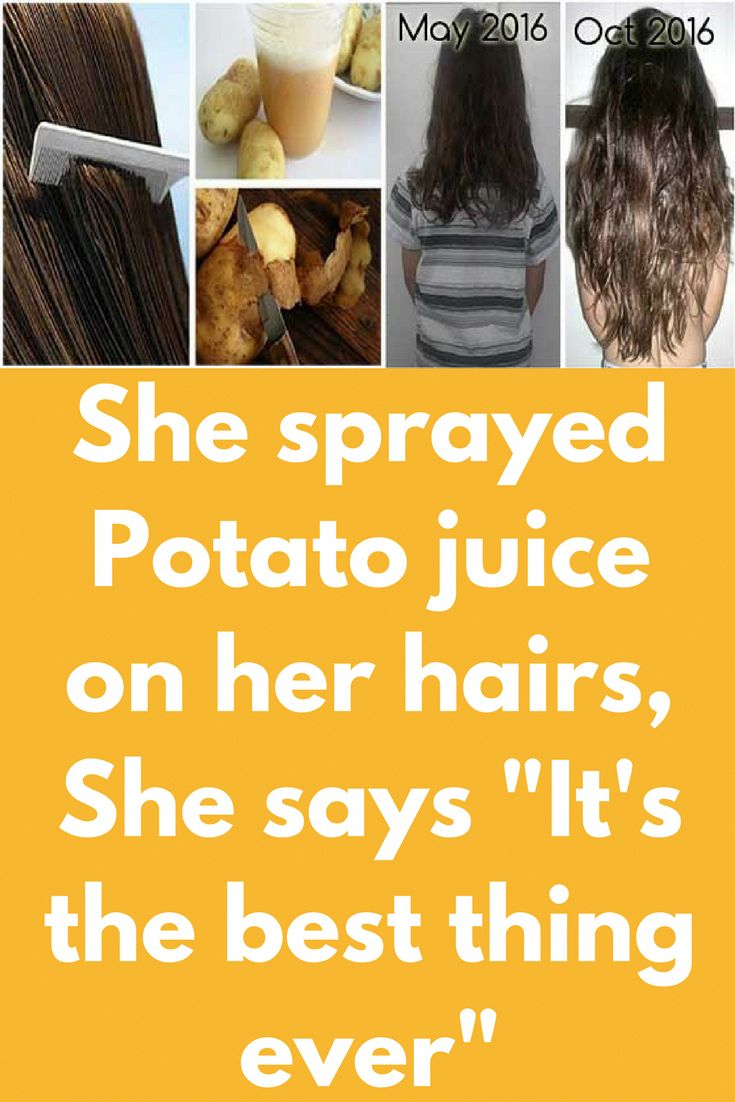 """She sprayed Potato juice on her hairs, She says """"It is the very best factor ever"""""""
