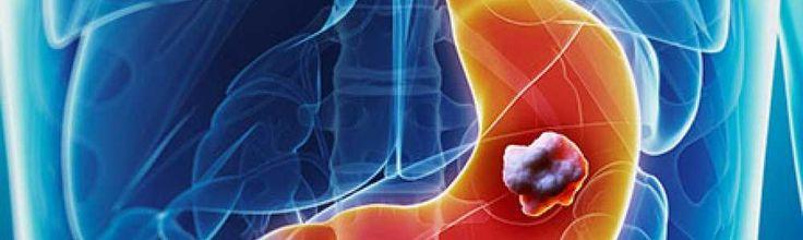 Tractul gastro intestinal sau GI, inlcude gura, esofagul, stomacul, intestinul subtire si intestinul gros. In tractul gastro intestinal are loc digestia alimentelor, astfel stomacul colecteaza alimentele si utilizeaza enzime pentru a divide elementele partial digerate in nutrienti folositori.
