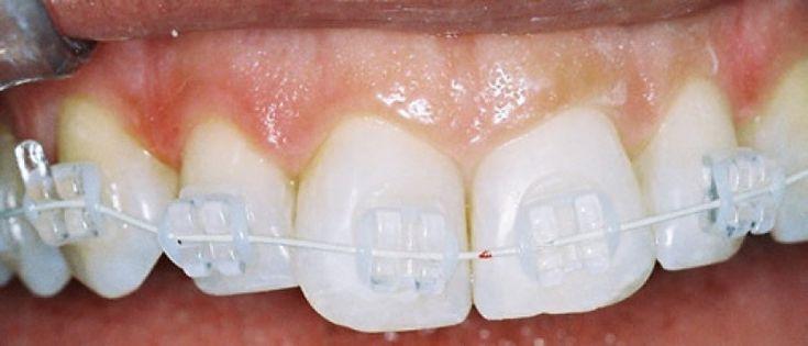 Pronto, você consultou seu Ortodontista e descobriu que vai precisar usar aparelho fixo. Ele(a) ofereceu a você algumas opções e modelos.......