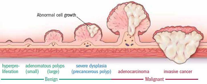 Progression of colon polyp