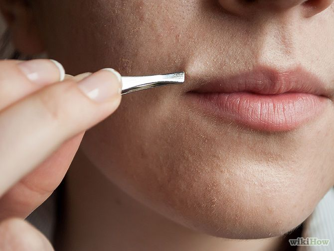 How to Get Rid of Female Facial Hair