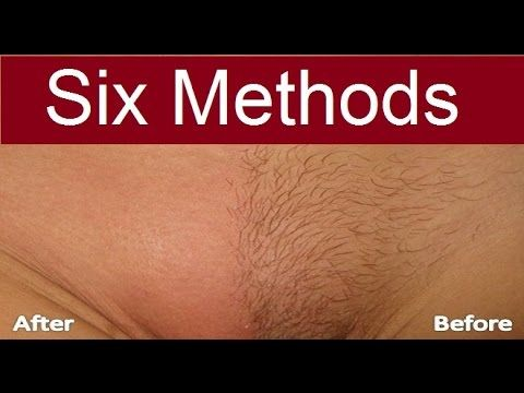 How I removed my armpit hair permanently body hair removal - YouTube