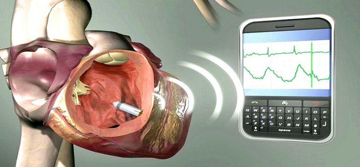Biotronik introduces Eluna 8 pacemaker in Japan