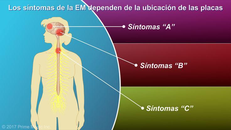 Los síntomas de la EM dependen de la ubicación de las placas en el cerebro y la médula espinal.slide show: explicación de la esclerosis múltiple. en esta presentación de diapositivas se describen las causas, los síntomas comunes y la naturaleza de la esclerosis múltiple, así como distintos tipos de farmacoterapias utilizadas para el tratamiento de la enfermedad.