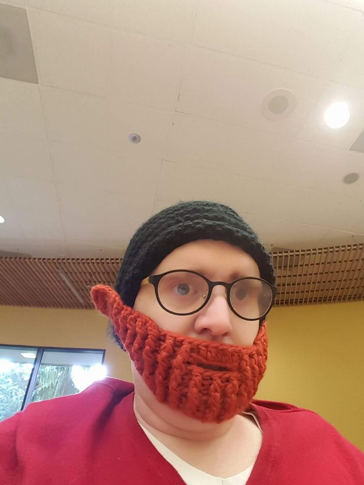 Lost my hair due to chemotherapy this is the closest i could get to having my red beard back