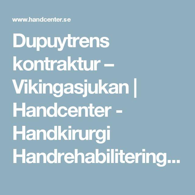 Dupuytrens kontraktur – Vikingasjukan | Handcenter - Handkirurgi Handrehabilitering & Mottagning