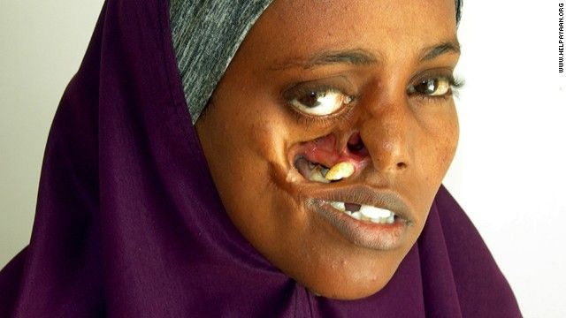 Just 2 when her face was torn apart by shrapnel during the Somali Civil War, Ayan Mohamed spent 23 years with a hole in her cheek. Ayan came to the Edna Adan University Hospital just a year after it opened, and although the hospital lacked the expertise  to help her, Edna has worked to get her assistance for. With the help of the Brisbane Rotary Club in Australia and experts at the Wesley Hospital in Brisbane who donated their services, Ayman underwent surgery February 22, 2014.