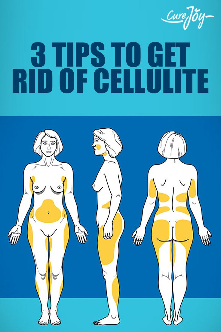 3 Tips To Get Rid Of Cellulite   www.HealthNeuvo.com