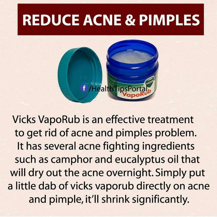 5 Easy Natural Tips for Curing Acne acne-cure.digimkt... Finally A CURE!! acne nodule . revitol.amazitter... This made all the difference