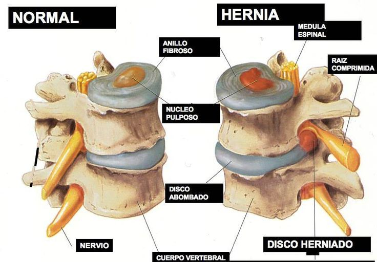 Qué es una hernia en la columna? - Quiropraxia1 http://www.quiropraxia1.com/blog---ideas-y-consejos/qu-es-una-hernia-en-la-columna