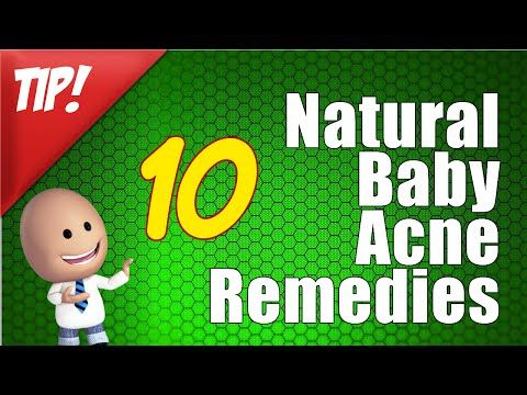 "How To Get Rid Of Baby Acne - Natural Baby Acne Remedies -  CLICK HERE for the Acne No More program #acne #acnecure #acnetips #acnecare How To Get Rid Of Baby Acne Natural Baby Acne Remedies Baby Acne Treatment ""For the best video for How To Get Rid Of Baby Acne, I think you should check out:  This video is in response to Healthguru video Baby Acne (... - #Acne"