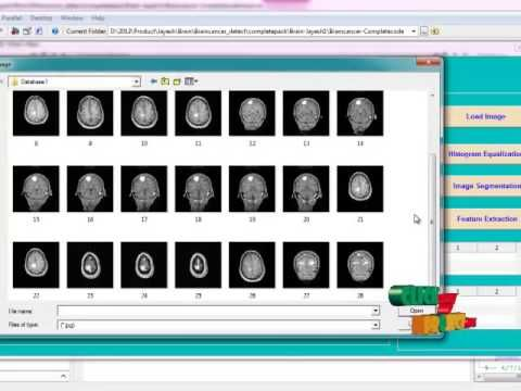 Final Year Projects | BIOLOGICAL EARLY BRAIN CANCER DETECTION USING ARTIFICIAL NEURAL NETWORK - WATCH THE VIDEO.    *** how to detect cancer early ***   Including Packages ======================= * Complete Source Code * Complete Documentation * Complete Presentation Slides * Flow Diagram * Database File * Screenshots * Execution Procedure * Readme File * Addons * Video Tutorials * Supporting...