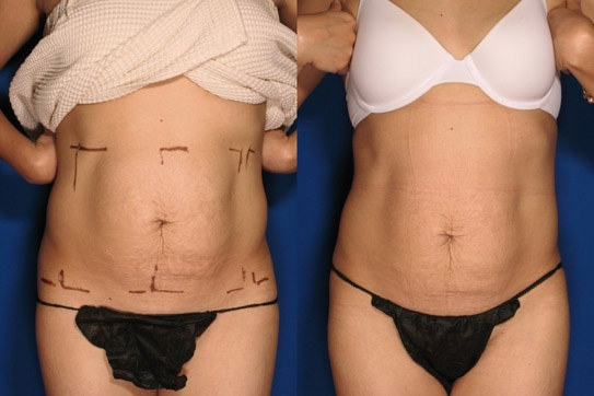 #Exilis before and after. Body reshaping, no downtime, #effective