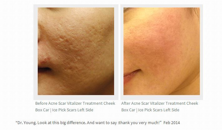 Natural Acne Treatment Products