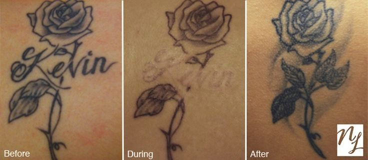 Tattoo removal for a small, precise part of a larger tattoo. Performed at New Look Laser Tattoo Removal in Houston, TX.