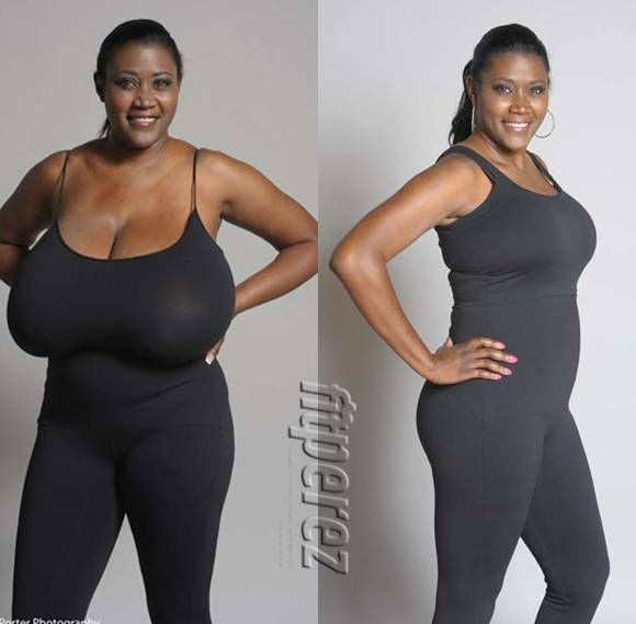 Woman With Size 36NNN Breasts Has A Life Changing ...