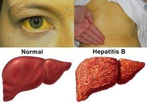 Sedangkan Pengertian Secara Medis Hepatitis B Adalah Suatu Penyakit