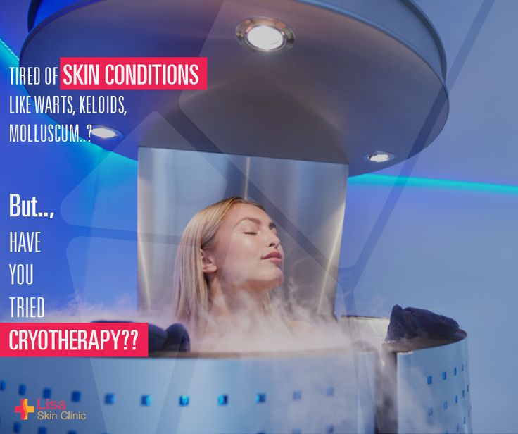"For all those people who have tried and tired of different treatments for warts, keloids, molluscum etc., we have the ultimate solution - ""Cryotherapy""! #LisaSkinClinic"