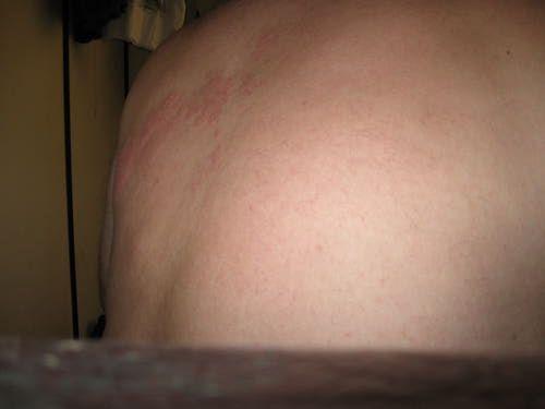 Raised Rash: Hives or Shingles?