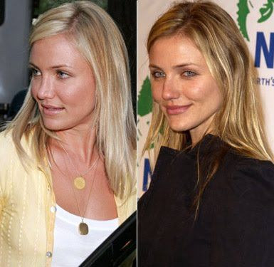 Cameron Diaz-plastic surgery before-and after nose job 2