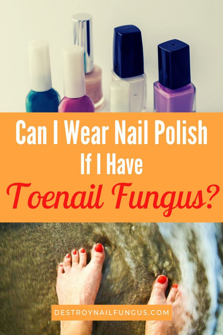 Can I Wear Nail Polish If I Have Toenail Fungus? What You Must Know ...