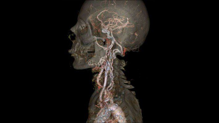 10. You Won't Believe How Accurate GE's New CT Scanner Is...