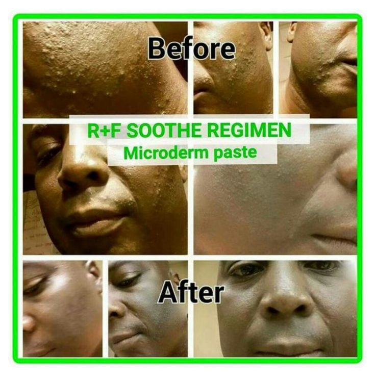 Rodan and Fields Soothe Regimen  Foreveryoungwithalycia.myranf.com