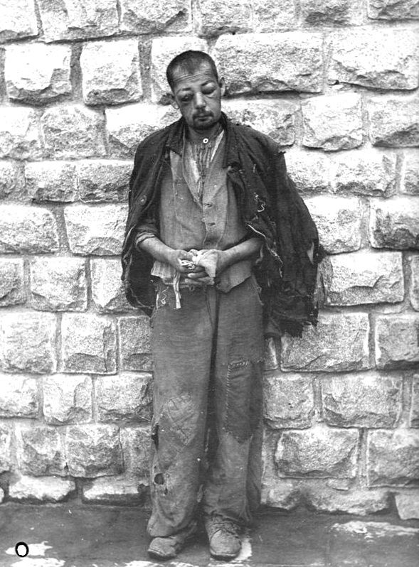 A Battered Inmate At Mauthausen Concentration Camp Stands