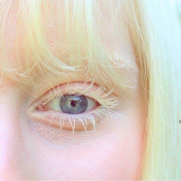 частности альбинос человек фото глаза наказание бацзы