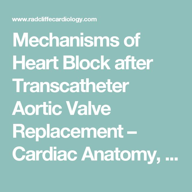 Mechanisms of Heart Block after Transcatheter Aortic Valve Replacement – Cardiac Anatomy, Clinical Predictors and Mechanical Factors that Contribute to Permanent Pacemaker Implantation - Radcliffe Cardiology