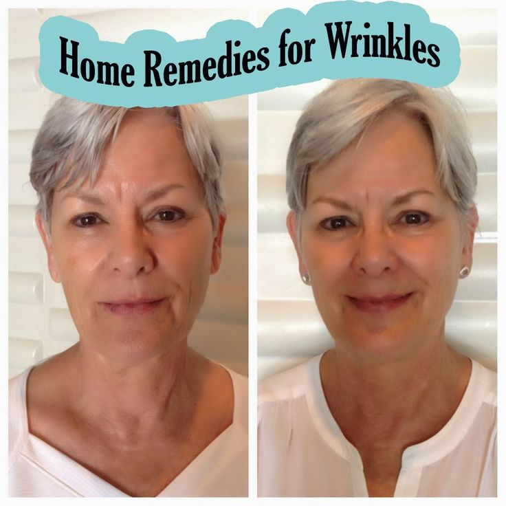 Home Remedies for Wrinkles | Tips Zone