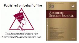 """We are extremely proud to announce that our very own Dr. Rosen was published in the March 2016 Volume of the Aesthetic Surgery Journal! The Aesthetic Surgery Journal is a leading peer-reviewed international journal publishing high-quality research in aesthetic surgery.  Dr. Rosen's publication titled, 'Periareolar Closure With Barbed Sutures,"""" discusses the evolution of a technique he uses while performing augmentation, mastopexy, and breast reduction surgeries.   Congratulations Dr. Rosen!"""