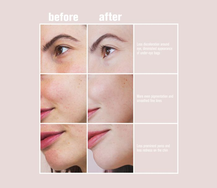 Anti Aging Skincare Routine For 30s That Works In 2020 Skin Care Routine Anti Aging Skincare Routine Flaking Skin
