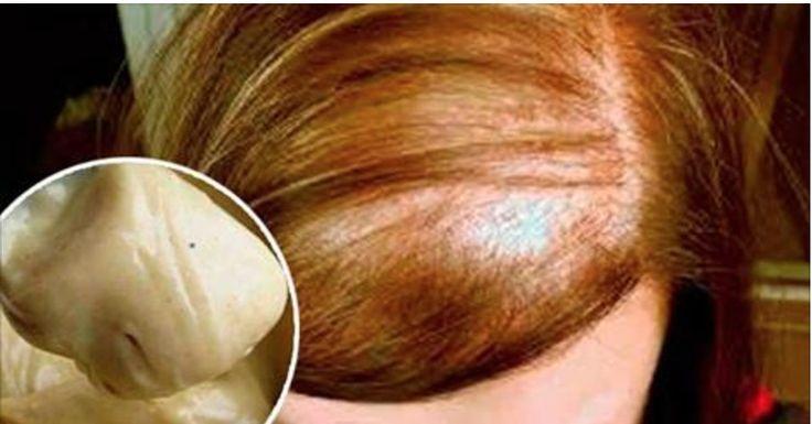 A perda de cabelo acontece por diferentes fatores, como falta de higiene, envelhecimento, estresse, alterações hormonais ou pelo uso de alguns produtos de beleza.