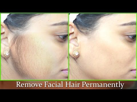 Remove Facial Hair Permanently - 100% Natural effective Instant Remedy/ Smooth Soft Fair Face atHome - YouTube